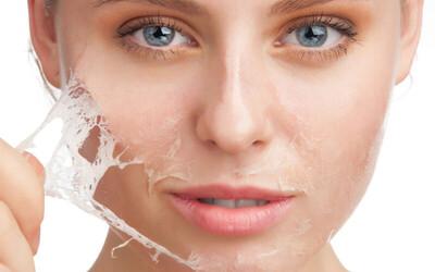 Chemical Peeling + Free Konsultasi + voucher produk Rp 10.000