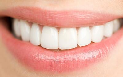 Veener Direct 1 gigi + Konsultasi + Pemeriksaan Dengan Intracamera + scalling + Free polishing after veener
