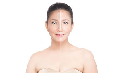 Skin Tightening & Wringkle Reducing with Radio Frequency Maximus
