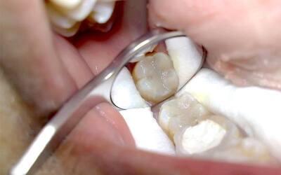 Konsultasi + Penambalan Sewarna Gigi (Composite) Khusus Gigi Belakang