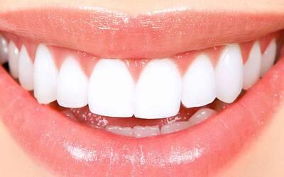 1x Teeth Brightening + Scaling + Home Bleaching + Intra Oral Scan + Konsultasi Dokter