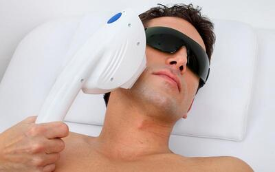 Men's 1-Year (12 sessions) Sharplight IPL Hair Removal for 2 People (Medium Area)