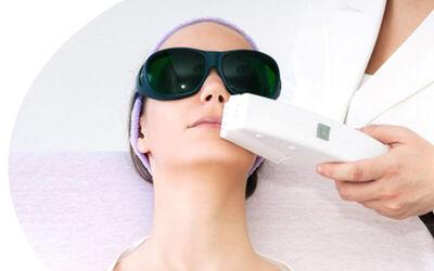 5x Facial Acne + PDT