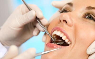 Konsultasi + Pemeriksaan Intra Oral Camera + Stain Removal + Scalling